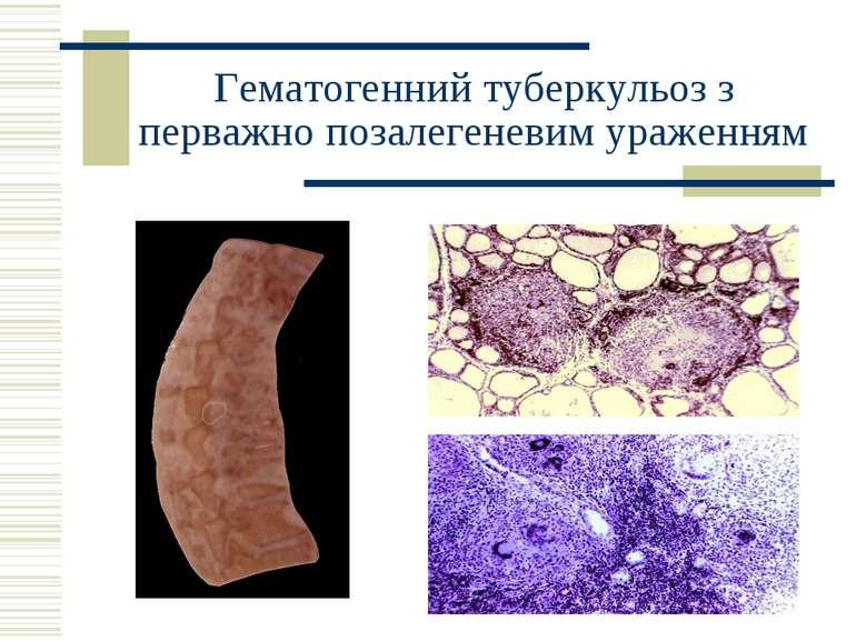 Гематогенний туберкульоз з перважно позалегеневим ураженням