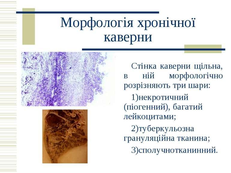 Морфологія хронічної каверни Стінка каверни щільна, в ній морфологічно розріз...
