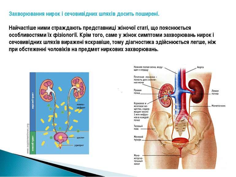 Захворювання нирок і сечовивідних шляхів досить поширені. Найчастіше ними стр...