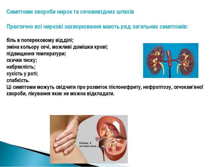 Симптоми хвороби нирок та сечовивідних шляхів Практично всі ниркові захворюва...
