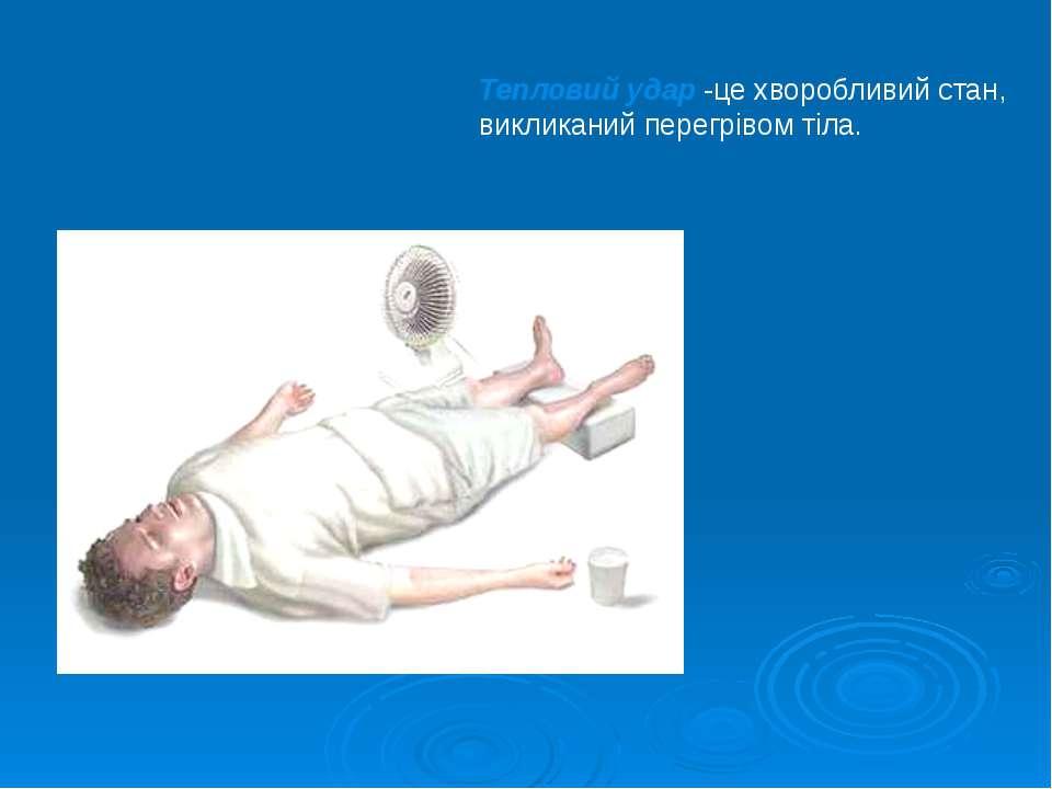 Тепловий удар -це хворобливий стан, викликаний перегрівом тіла.