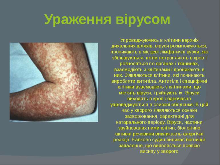Ураження вірусом Упроваджуючись в клітини верхніх дихальних шляхів, віруси ро...