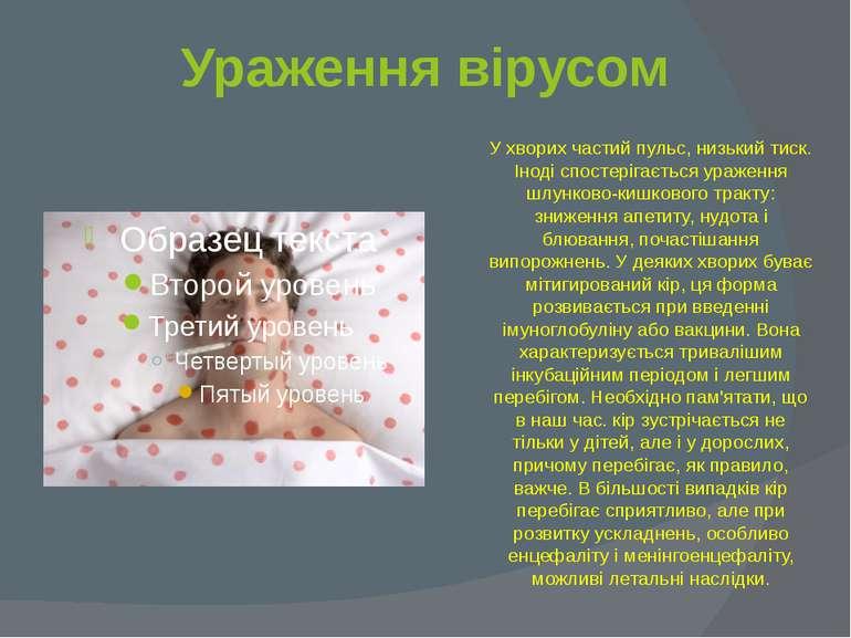 Ураження вірусом У хворих частий пульс, низький тиск. Іноді спостерігається у...
