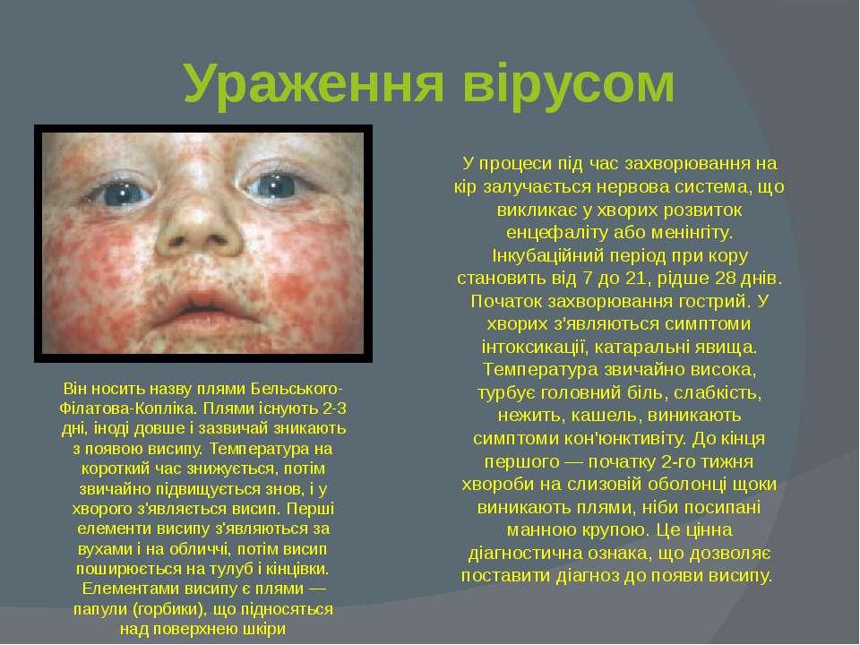 Ураження вірусом У процеси під час захворювання на кір залучається нервова си...