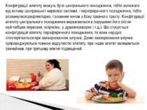 Конфігурації апетиту можуть бути центрального походження, тобто залежати від ...