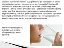 Посилена спрага і часті прийоми води (polydipsia) при захворюваннях шлунка сп...