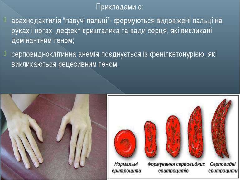 """Прикладами є: арахнодактилія """"павучі пальці""""- формуються видовжені пальці на ..."""