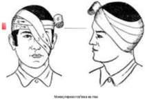 Монокулярная пов'язка на глаз