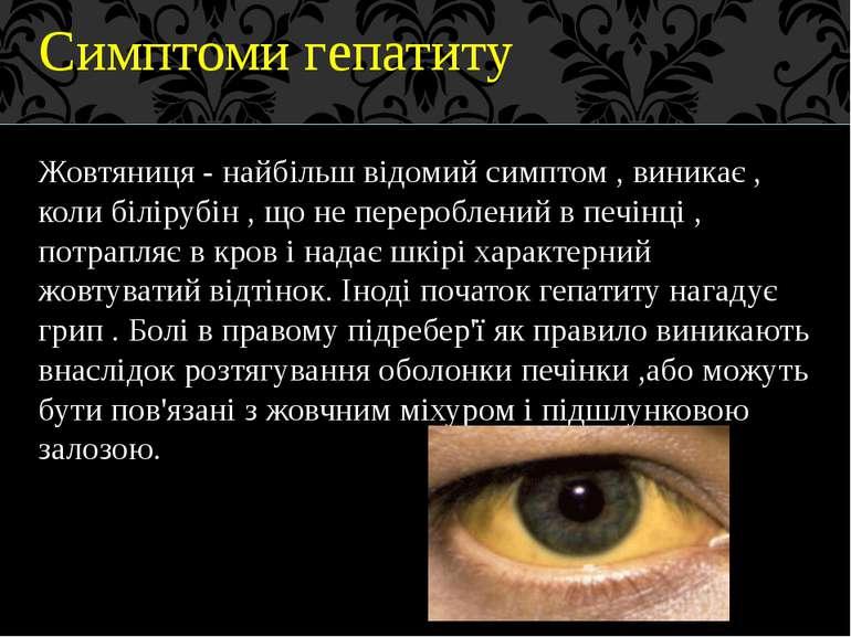 Симптоми гепатиту Жовтяниця - найбільш відомий симптом , виникає , коли білір...