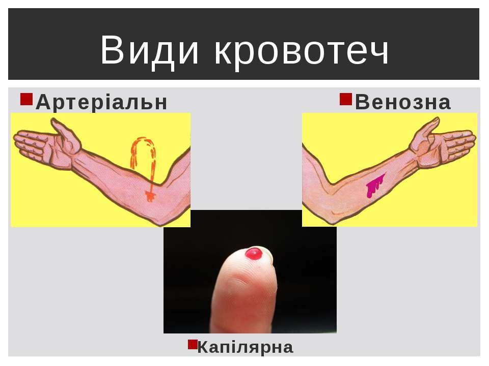 Капілярна Види кровотеч Венозна Артеріальна