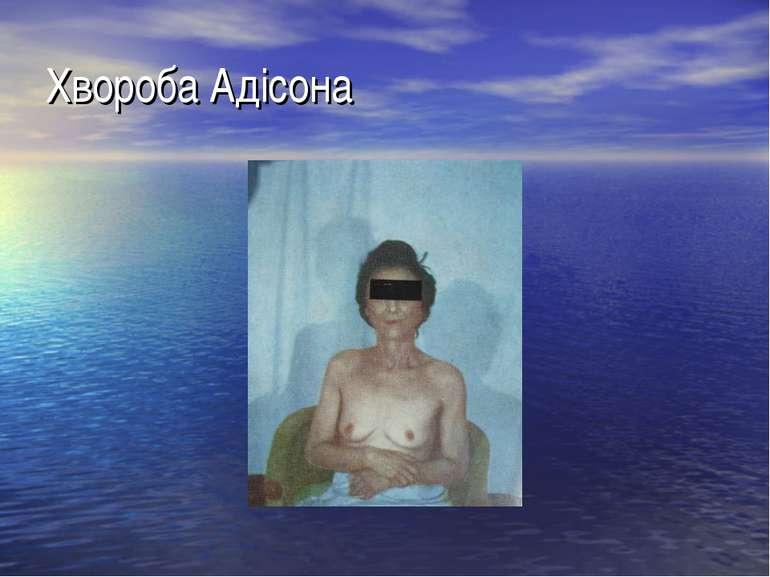 Хвороба Адісона