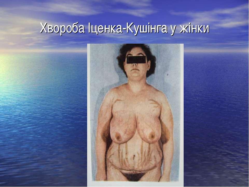 Хвороба Іценка-Кушінга у жінки