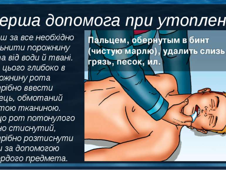 Перш за все необхідно звільнити порожнину рота від води й твані. Для цього гл...