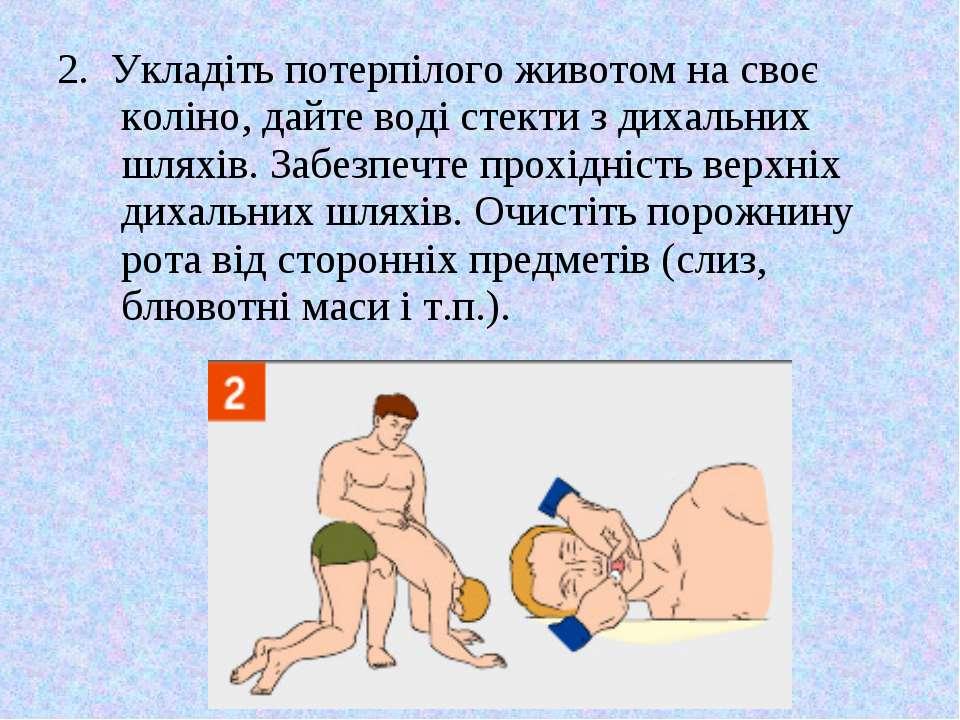 2. Укладіть потерпілого животом на своє коліно, дайте воді стекти з дихальних...