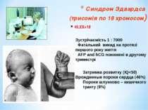 Синдром Эдвардса (трисомія по 18 хромосом) 46,ХХ+18 Зустрічаємість 1 : 7000 Ф...