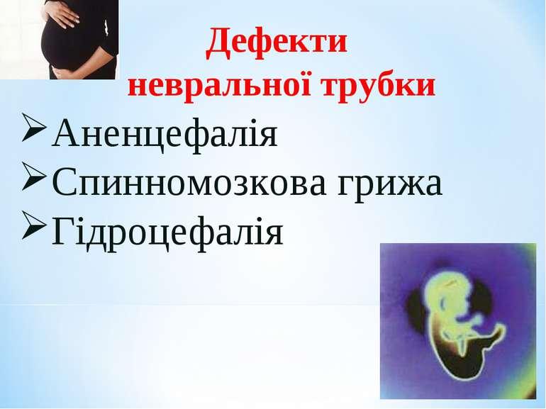 Дефекти невральної трубки Аненцефалія Спинномозкова грижа Гідроцефалія