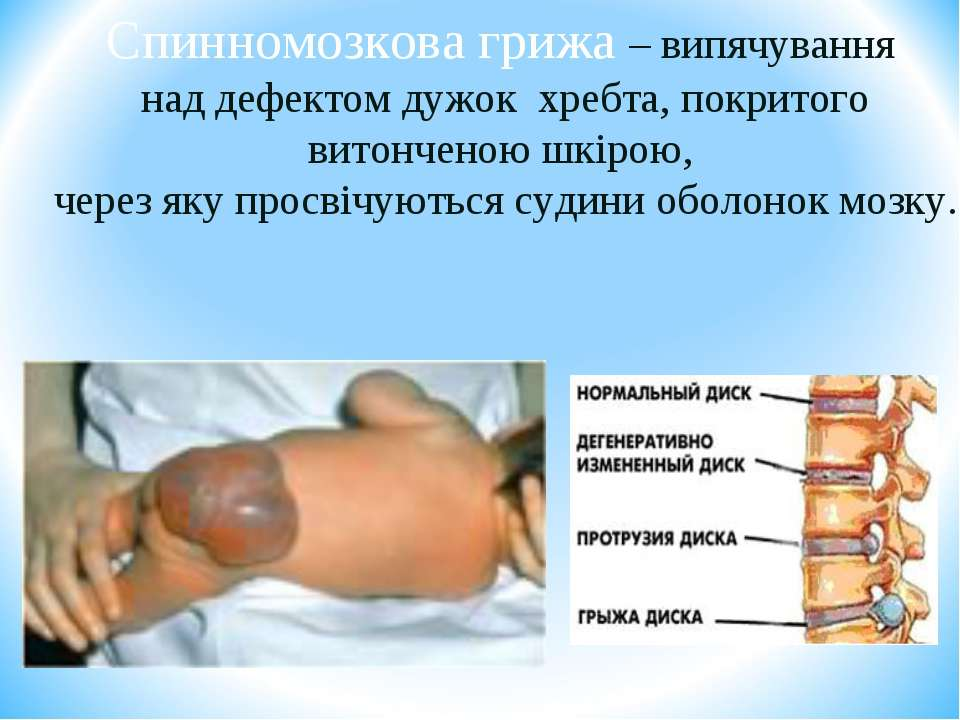 Спинномозкова грижа – випячування над дефектом дужок хребта, покритого витонч...