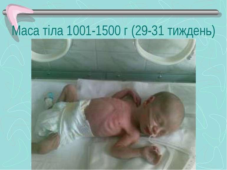 Маса тіла 1001-1500 г (29-31 тиждень)