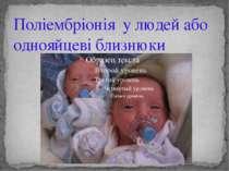 Поліембріонія у людей або однояйцеві близнюки