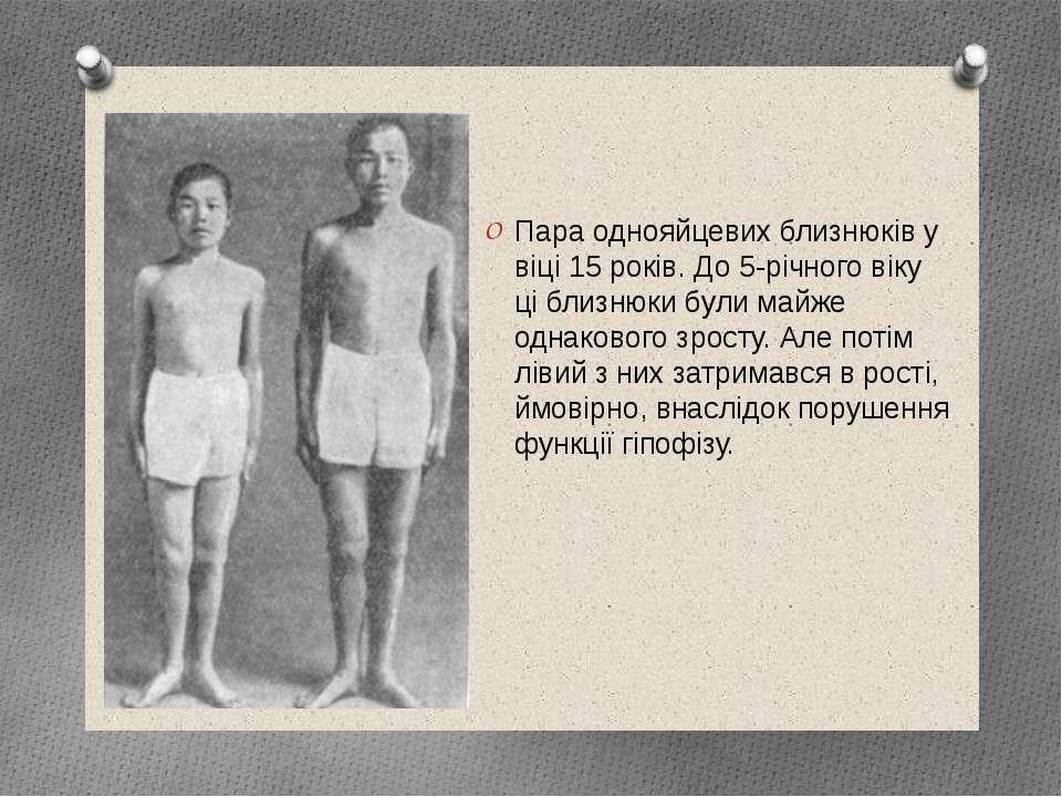Пара однояйцевих близнюків у віці 15 років. До 5-річного віку ці близнюки бул...