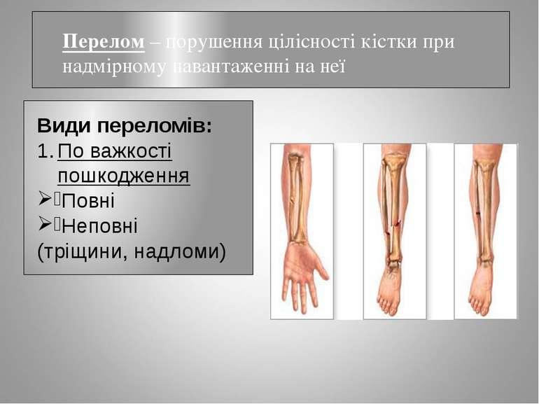 Перелом – порушення цілісності кістки при надмірному навантаженні на неї Види...