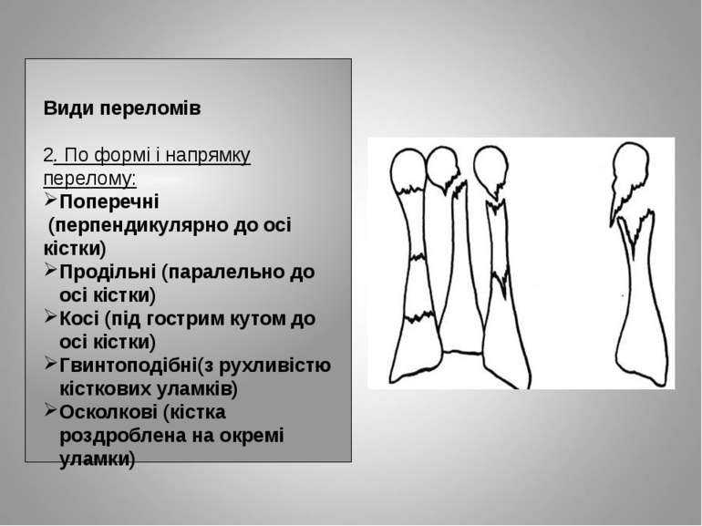 Види переломів 2. По формі і напрямку перелому: Поперечні (перпендикулярно до...