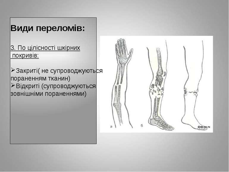 Види переломів: 3. По цілісності шкірних покривів: Закриті( не супроводжуютьс...