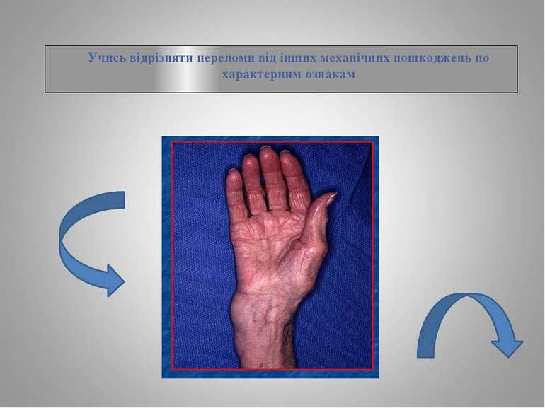 Учись відрізняти переломи від інших механічних пошкоджень по характерним ознакам
