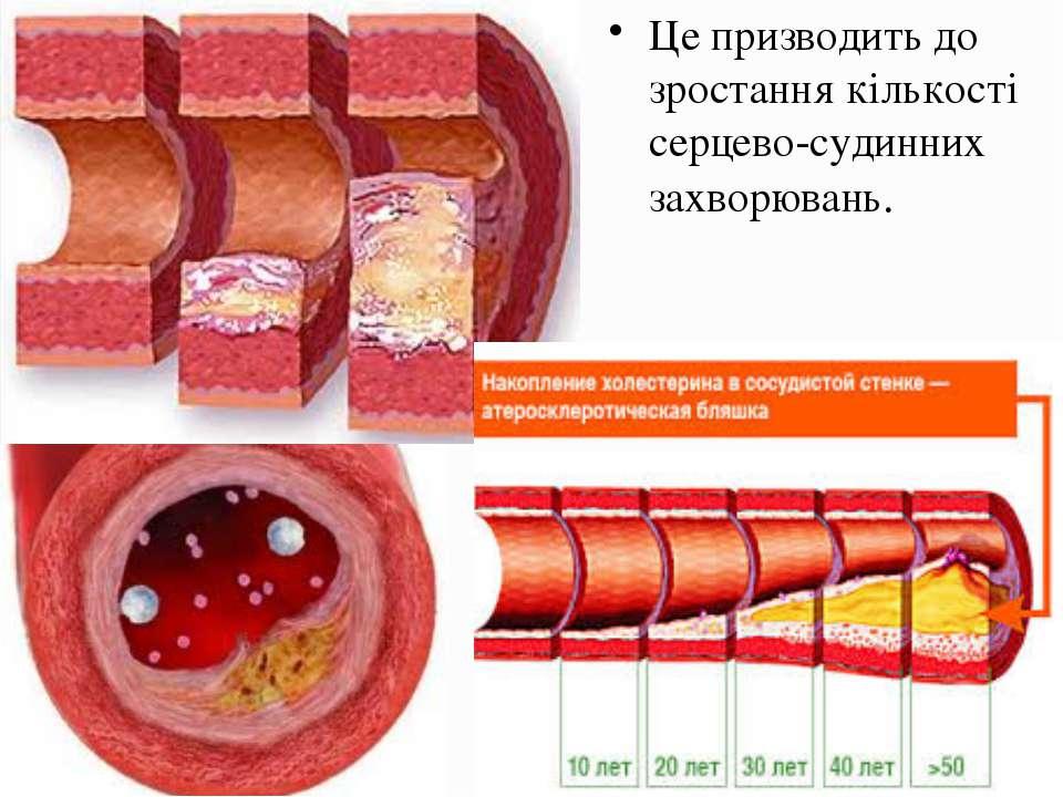 Це призводить до зростання кількості серцево-судинних захворювань.