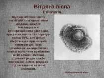 Вітряна віспа Етнологія Збудник вітряної віспи нестійкий поза організмом люди...