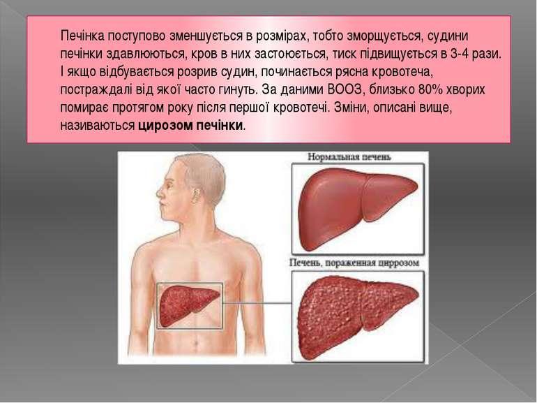 Печінка поступово зменшується в розмірах, тобто зморщується, судини печінки з...