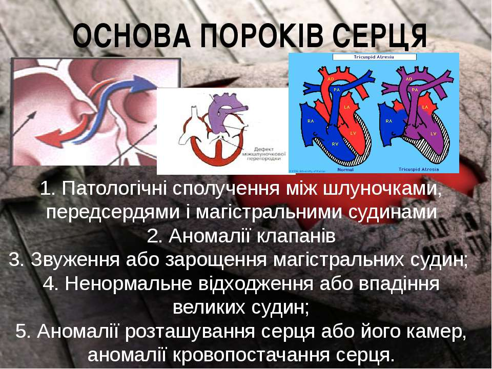 ОСНОВА ПОРОКІВ СЕРЦЯ 1. Патологічні сполучення між шлуночками, передсердями і...