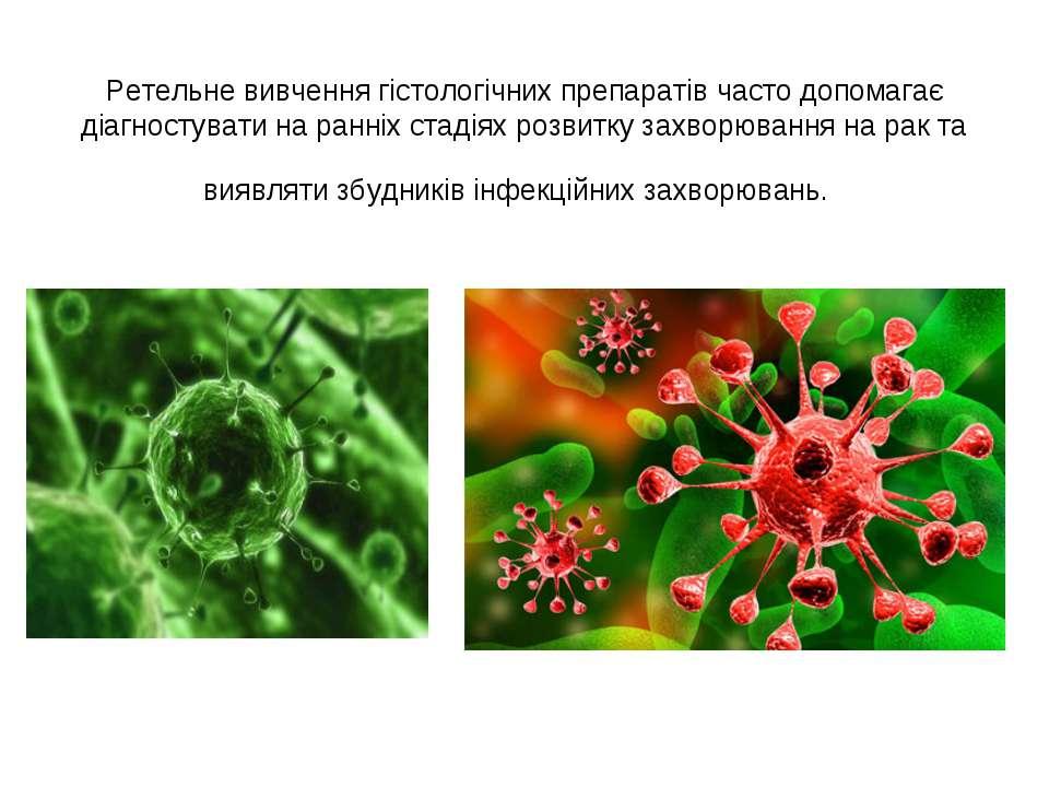 Ретельне вивчення гістологічних препаратів часто допомагає діагностувати на р...