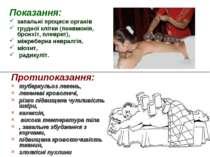 Показання: запальні процеси органів грудної клітки (пневмонія, бронхіт, плевр...