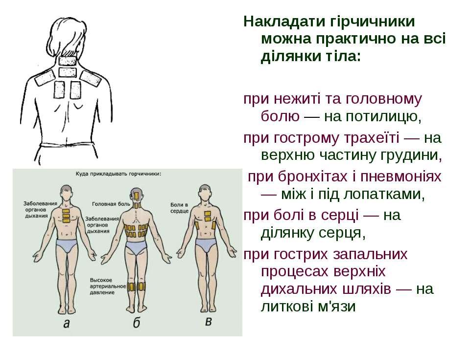Накладати гірчичники можна практично на всі ділянки тіла: при нежиті та голов...