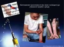 Багаторазове проколювання вен може призводити до утворення тромбів і рубців.