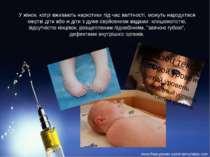У жінок, котрі вживають наркотики під час вагітності, можуть народитися мертв...