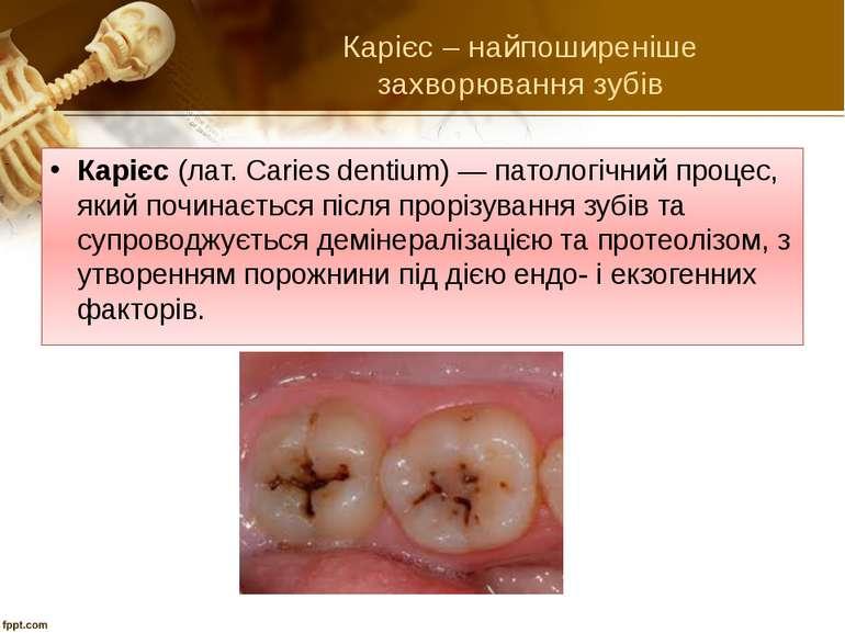 Карієс – найпоширеніше захворювання зубів Карієс (лат. Caries dentium) — пато...
