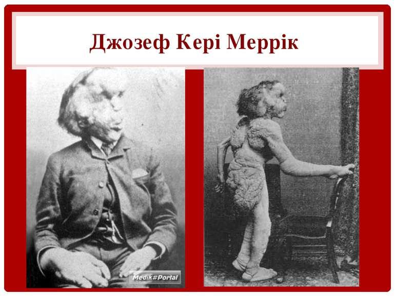 Джозеф Кері Меррік