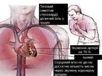 Типовий симптом стенокардії, да'вячий біль у грудях Звуження артерії на 70 % ...
