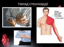 Напад стенокардії Типова локалізація болю при стенокардії
