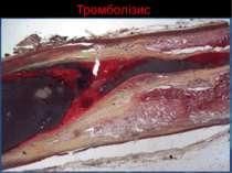 Тромболізис