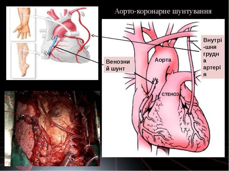 Аорта Аорто-коронарне шунтування Венозний шунт Внутрі-шня грудна артерія