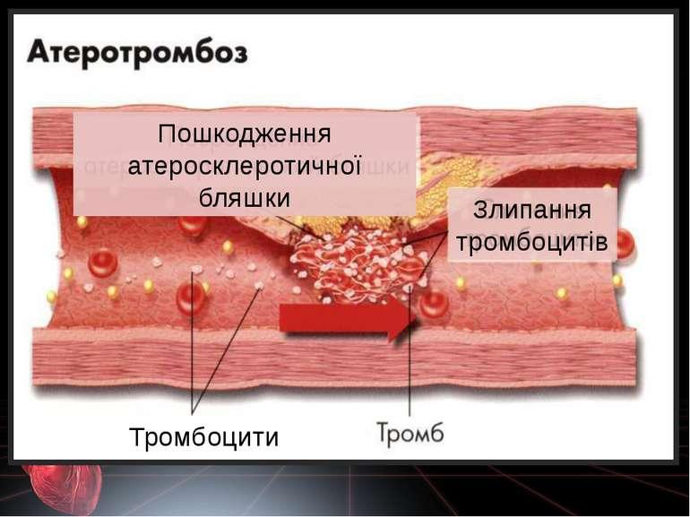 Злипання тромбоцитів Тромбоцити