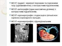 МСКТ грудної, черевної порожнин та порожнини тазу (одномоментне) з контрастни...