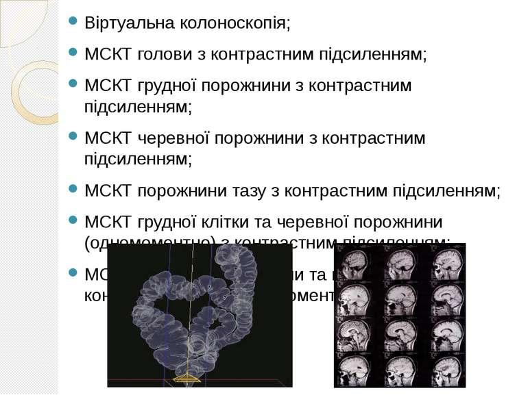 Віртуальна колоноскопія; МСКТ голови з контрастним підсиленням; МСКТ грудної ...