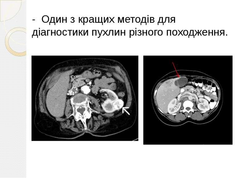 - Один з кращих методів для діагностики пухлин різного походження.