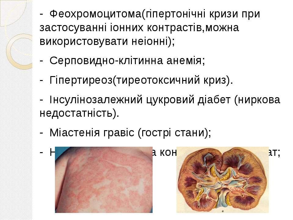 - Феохромоцитома(гіпертонічні кризи при застосуванні іонних контрастів,можна ...