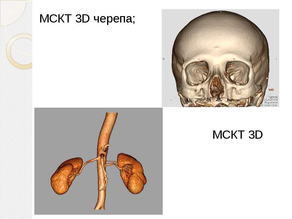 МСКТ 3D черепа; МСКТ 3D нирок;