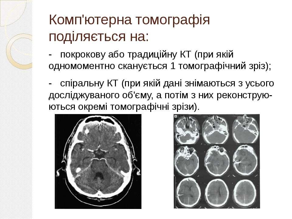 Комп'ютерна томографія поділяється на: - покрокову або традиційну КТ (при які...